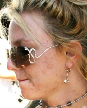 britney-spears-without-makeup